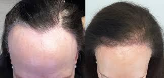 old hair at 59 hair transplants limmer htc san antonio tx