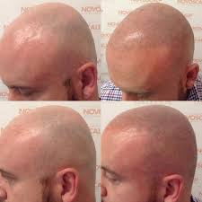 New Hair Loss Treatment Scalp Micropigmentation Gallery Before And After Photos Novo