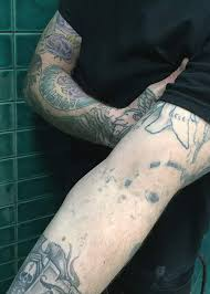 undrawing my tattoos bbc news
