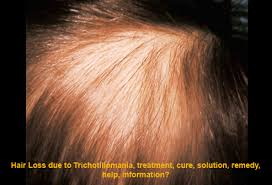 hair styles for trichotellamania trichotillomania cure finally hair fibers blog