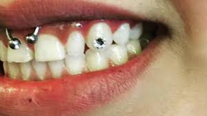 diamond stud in tooth tooth gems