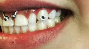 diamond stud on tooth tooth gems