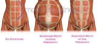 stomach muscles after c section postpartum diastasis recti ab separation after pregnancy