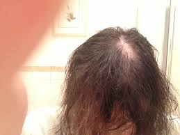 balding hair styles for black women hairstyles for thinning crown women trend hairstyle and haircut