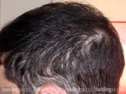 womans hair thinning on sides balding blog drugs cause hair loss archives page 9 of 54