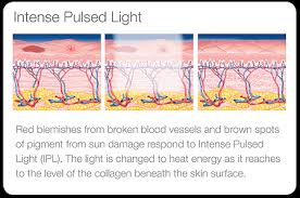 How Does Light Therapy Work Ipl Light Therapy Balboa Medical Center U0026 Spa Amir H Raeesy