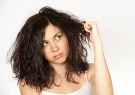 female receding receding hairline