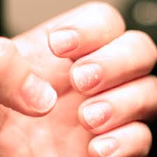 brittle nails causes u0026 risk factors 9 natural treatments dr axe