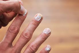 how do i get yellow stains out of my nails livestrong com