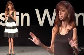 Ugliest World U0027s Ugliest Woman U0027 U0027s Amazing Motivational Speech Proves She U0027s