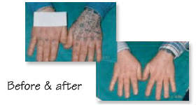 q switch laser removal of tattoos