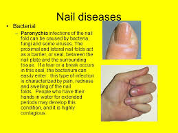 nail disorders ppt video online download
