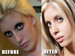 Alexia Moore Porn - star plastic surgery star comestic surgery january 2013