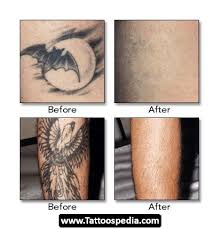 laser tattoo removal houston 01