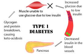 Diabetes Causing Blindness Three Main Types Of Diabetes Mellitus You Must Know