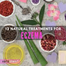 12 natural remedies for eczema