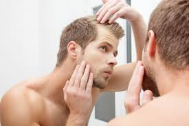 Does Diabetes Cause Hair Loss Low Vitamin D U0026 Hair Loss Livestrong Com
