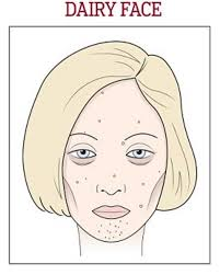 Face Acne Map Skincare Doctor Shows What Wine Gluten And Sugar Does To Your Face