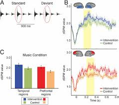 musical intervention enhances infants u0027 neural processing of