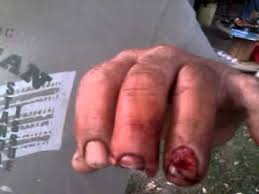Table Saw Injuries Uncle Dave U0027s Finger After Cut Off W Table Saw Youtube