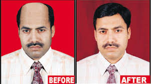 hair weaves for balding men welcome to elegance beauty clinic and health care center elegance
