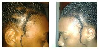 black cornrow hairstyles that cover edges unique natural hairstyles to cover thin edges natural hairstyles