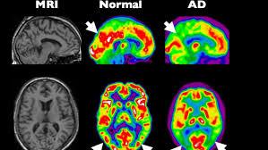si e des motions dans le cerveau l homme n utilise que 10 des capacités de cerveau pourquoi c