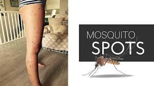 skincare l ways to treat spots on legs l mosquito bites