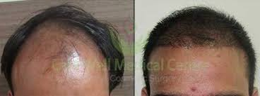 dhi hair transplant reviews how much does a hair transplantation cost in turkey suggest good