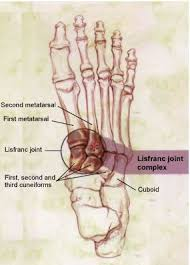 Top Foot Anatomy Lisfranc Injury Foot Sprain Midfoot Pain Top Of Foot Pain