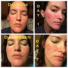neutrogena light therapy acne mask before and after acne light therapy illumask tcm