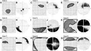 efficacy of the amsler grid test in evaluating glaucomatous