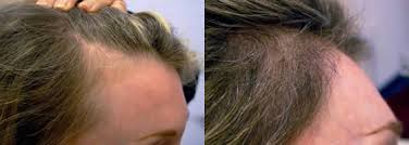 hair transplant month by month pictures before and after womens results ziering medical