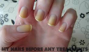 how to whiten yellow nails simple home remedies that work medimiss