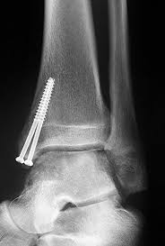 Talar Coalition Talar Dome Lesions The Foot And Ankle Online Journal Page 2