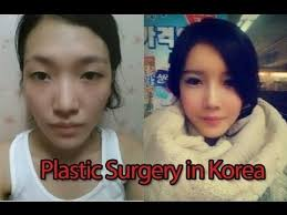 Meme Plastic Surgery - luxury asian family plastic surgery meme why koreans get so much