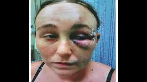 miami fan slaps officer fort lauderdale area police beat woman who witnessed homeless