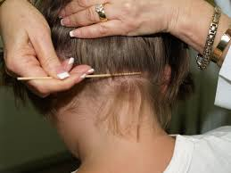 thanksgiving treat get rid of lice after thanksgiving with lice clinics of america