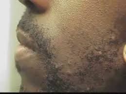 it looks like a simple ingrown hair within his chest ingrown hair prevention 99 effective prevention vs cure part