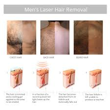 how much does laser hair removal cost on back quick painless laser hair removal for men laser by sia