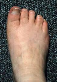 Skeletal Picture Of Foot Platyspondylic Lethal Skeletal Dysplasia Torrance Type Genetics