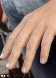 tattoo on the finger price peter andre has katie price name tattoo removed from finger daily
