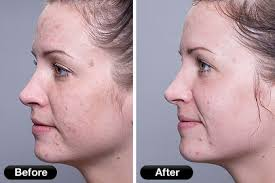 at home light therapy for acne bad acne scars we ve got you covered mint face body soul