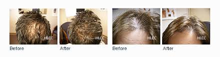 low level light therapy hair top laser light therapy for hair loss f91 in simple image collection