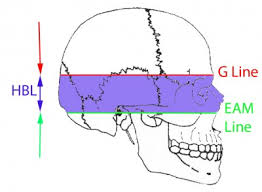 full text forensic investigation of cranial injuries due to blunt
