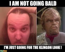 Receding Hairline Meme - avoid receding hairline for men visihow