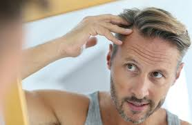 what gets rid of dht in body 1 fastest way to remove dht from your scalp naturally