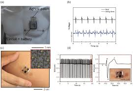 sensors free full text novel flexible wearable sensor
