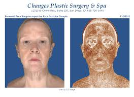 3dimaging before plasticsurgery can also isolate signs of sun