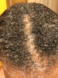 Transitioning Protective Styles - transitioning 4c hair 13 weeks no relaxer up do protective